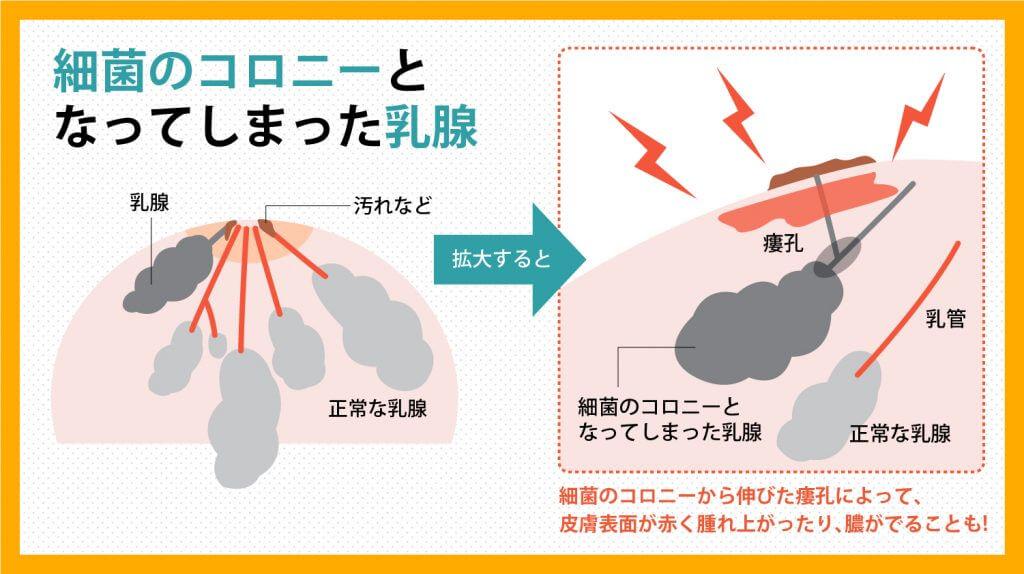 慢性乳腺炎を発症するメカニズム