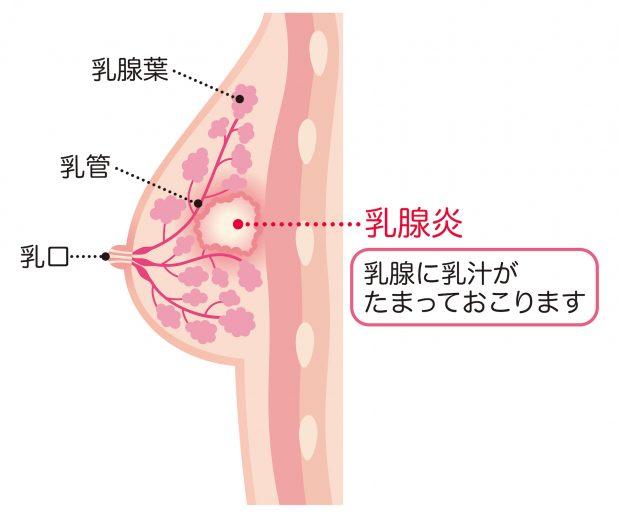 乳腺炎の原因