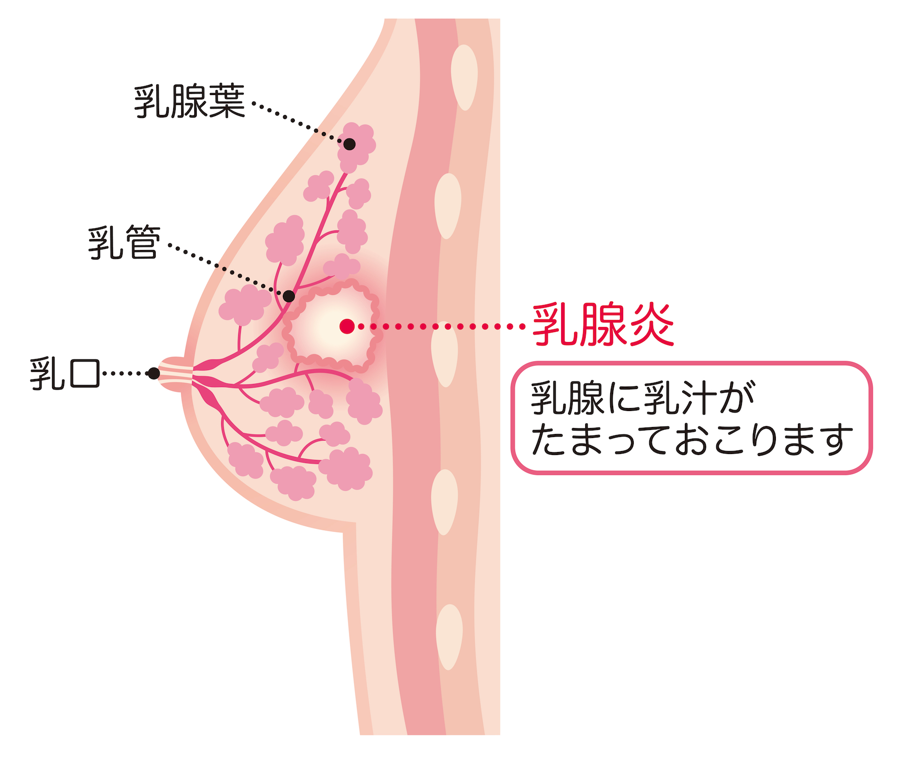 性 乳がん 炎症