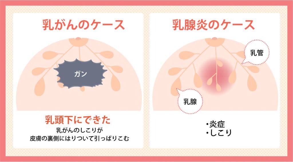 陥没乳首の原因