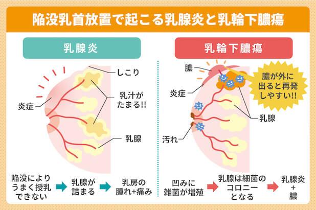 陥没乳首放置で起こる乳腺炎と乳輪下膿瘍