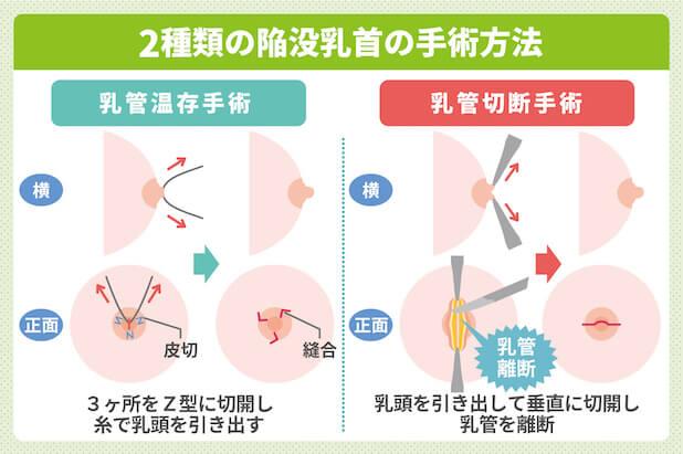 2種類の陥没乳首の手術方法