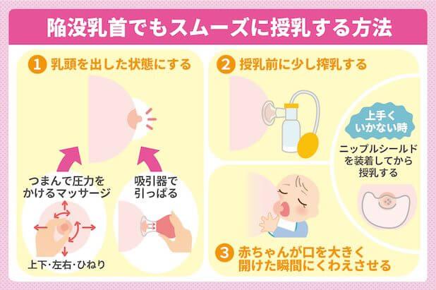 陥没乳首でもスムーズに授乳する方法