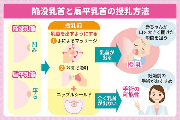 陥没乳首と扁平乳首の授乳方法