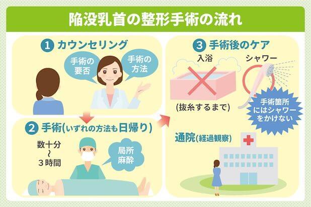 陥没乳首の整形手術の流れ