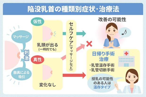 陥没乳首の種類別症状・治療法