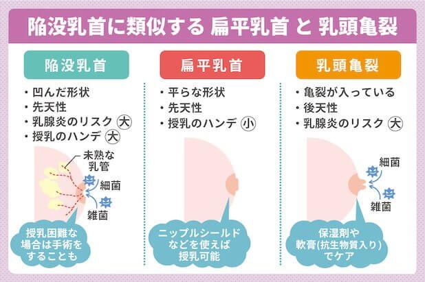 陥没乳首に類似する扁平乳首と乳頭亀裂