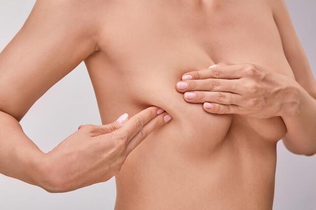 乳輪下膿瘍